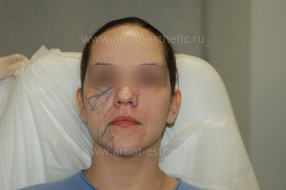 Фото проведения процедуры radiesse