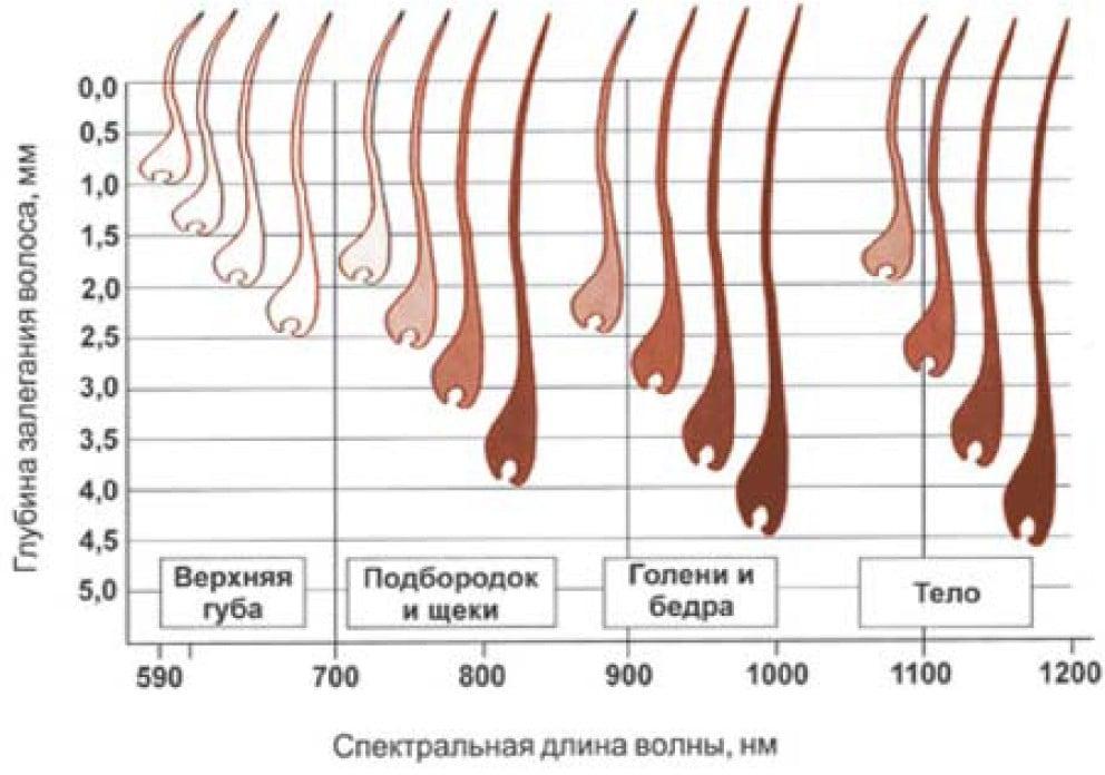типы залегания волос при лазерной эпиляции