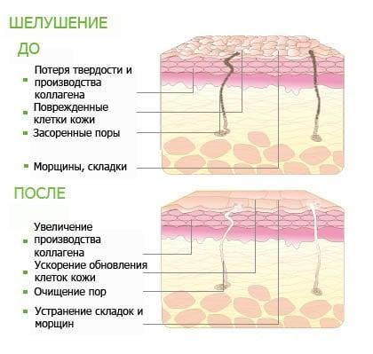 Пилинги химические