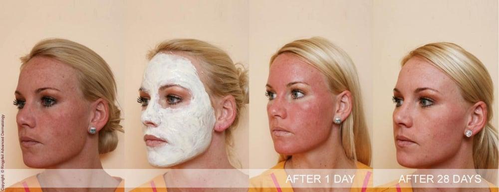 Aspirin mask for facial redness