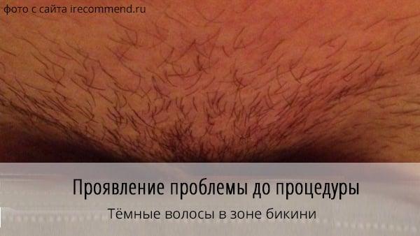 Почему не выпадают волосы после лазерной эпиляции: причины