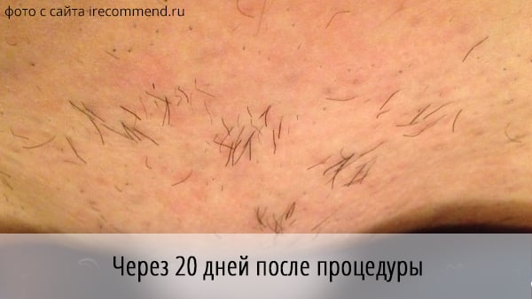 Волосы не выпали после лазерной эпиляции