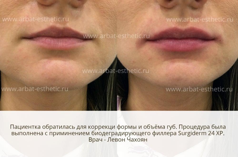 Стоимость увеличение губ препаратом Surgiderm