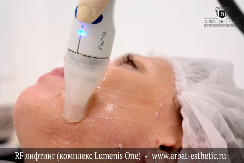 Фото лазерное омоложение прибор lumines qattrum Лазерное омоложение кожи Заводская улица Чебоксары