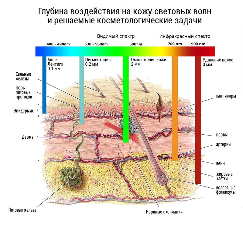 неодимовая или диодная лазерная эпиляция волос
