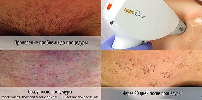 Лазерная эпиляция сколько нужно процедур бикини фотоэпиляция сормовский район нижний новгород