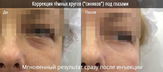 Коррекция синяков и тёмных кругов под глазами