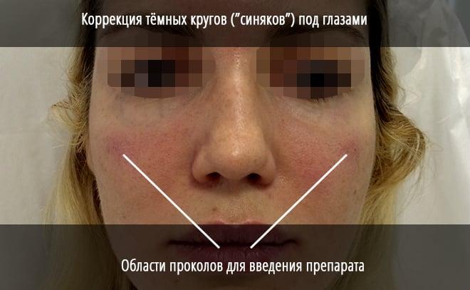 Как убрать синяки под глазами в домашних условиях от удара