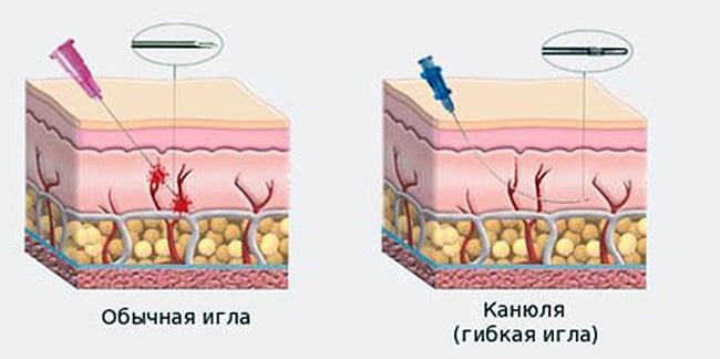 Носослезная борозда коррекция канюлями