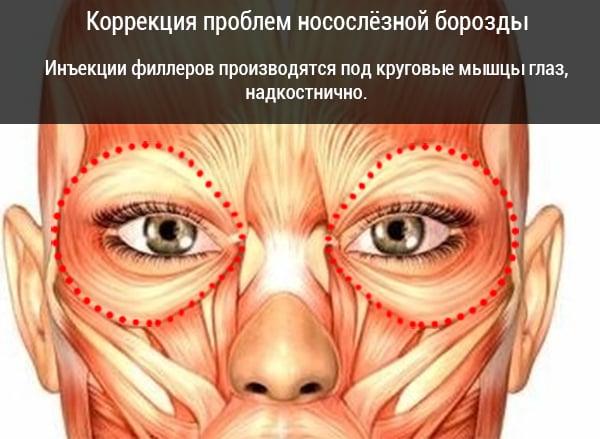 Причины темных кругов под глазами