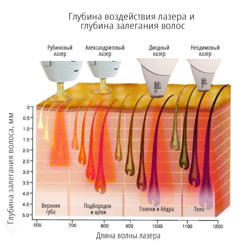 акне вульгарис средней степени тяжести лечение