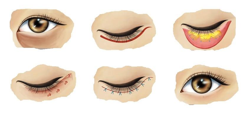 Пластическая операция по удалению мешков под глазами