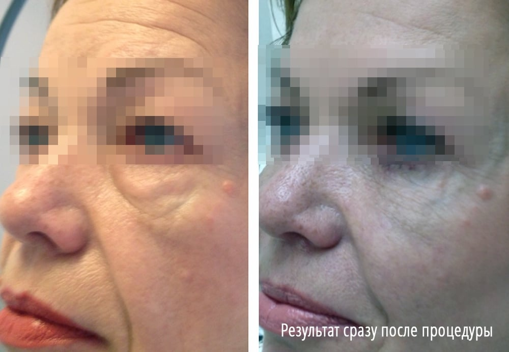 Убрать мешки под глазами при помощи инъекций гиалуроновой кислоты