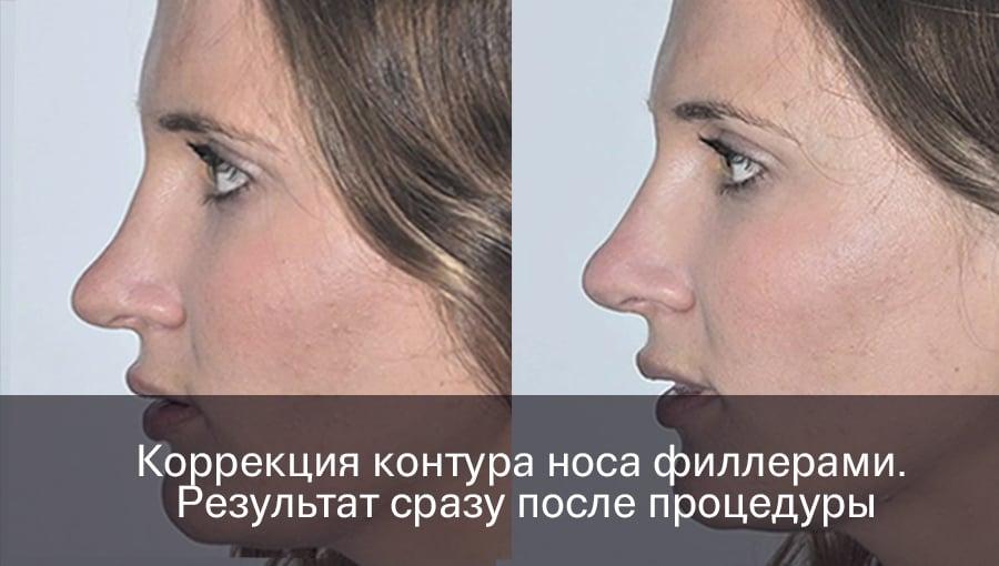Пластика носа опасно ли