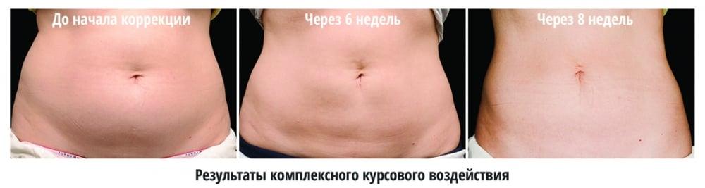 результаты коррекции области живота методом BODY FX