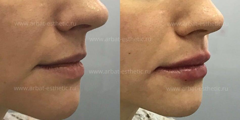 Увеличение губ арбат