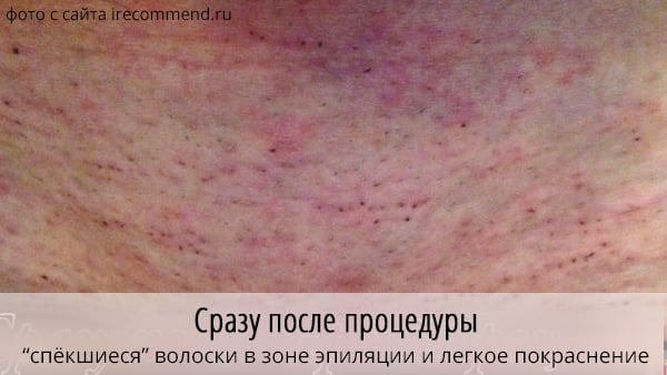 Эпиляция лазерная цена Лечение волос Территория сдт Маяк Чебоксары