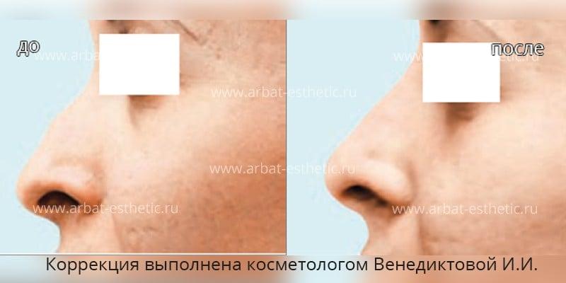 Савичева пластика носа