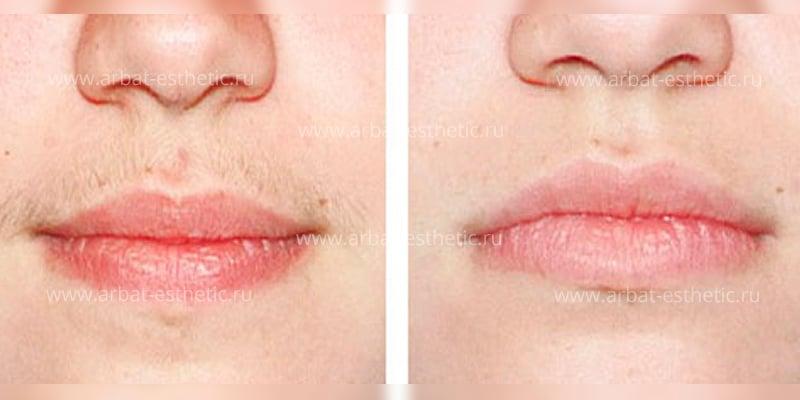 удаление волос над губой ниткой
