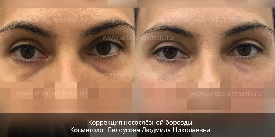 Темные круги под глазами откуда они и что с ними делать - Укра на