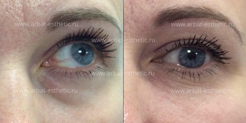 Коррекция впадин под глазами - пластическая хирургия