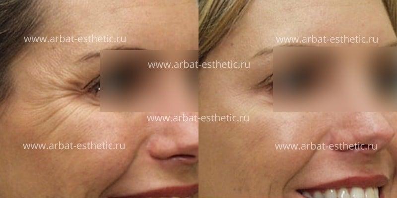 Фото до и после процедуры контурной пластики