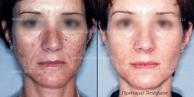 Причины появления прыщей на лице у женщин и лечение