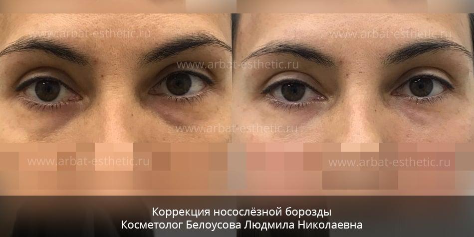 Плюсы и минусы мезотерапии под глаза