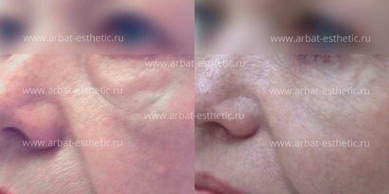 Инъекции под глаза - виды инъекционных процедур для омомложения