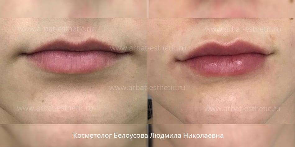увеличение члена гиалуроновой фото