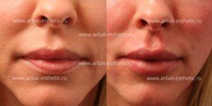 Во сколько можно увеличивать губы