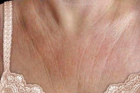 Морщины в зоне декольте, причины появления, как убрать морщины на декольте