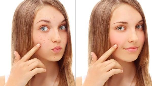 Чистая кожа после лечения акне