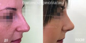 Ринопластика горбинки