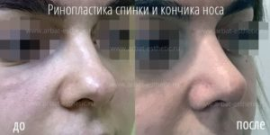 Ринопластика спинки и кончика носа